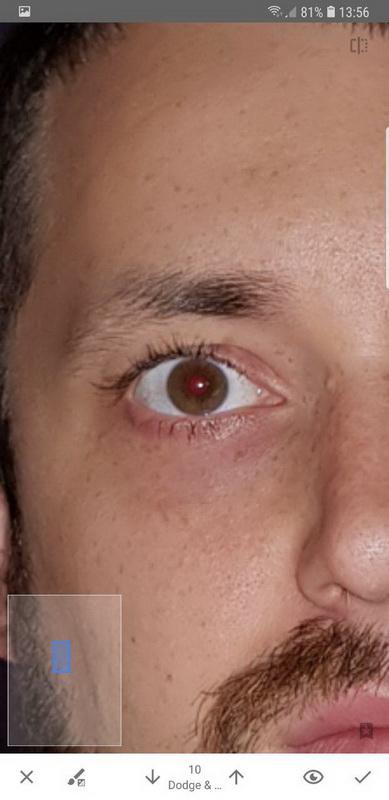 увеличиваем фото, что бы убрать красные глаза